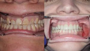allison-crowns-white-fillings