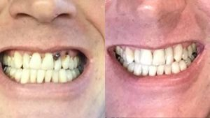 chris-bonding-implants-white-fillings