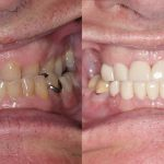 dean-feature-before-after-crowns-partial-dentures