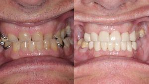 Dean-feature-before-after-coronas-dentaduras parciales