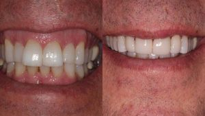 dean-veneers-front-teeth-feature