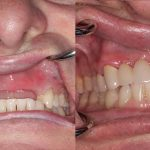 steve-teeth-bleaching-fixed-bridge-feature