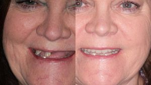 teresa-all-on-4-dental-implants-feature