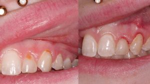 sara-before-after-tooth-decay-removal-cosmetic-bonding