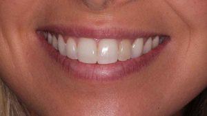 lauren-dientes-blanqueamiento-interno-característica